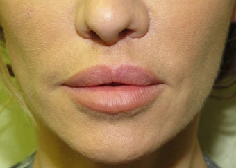 lip lift after 580971