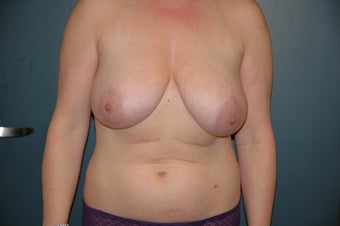 Breast reduction and lift before 152479