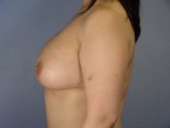 Breast Implants  after 305417