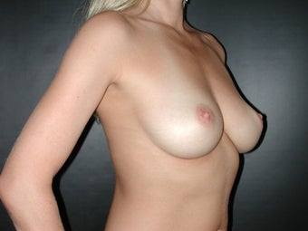 Breast Augmentation  before 110080