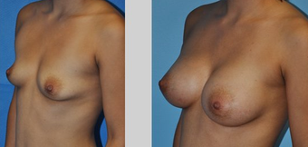 Flash Recovery Breast Augmentation TM before 253883