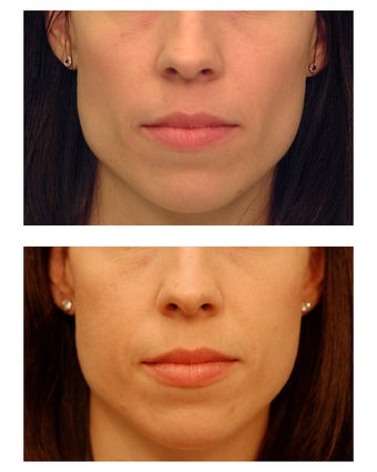 Cheek Augmentation before 347496