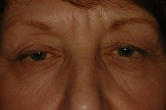 Bilateral Eyelid Lift and Blepharoplasty before 313336