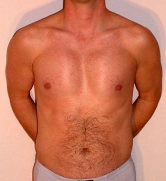 Male Chest Enhancement after 525476
