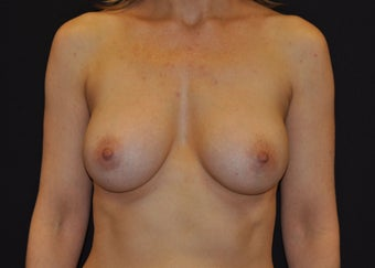 "Bilateral ""dual plane"" breast augmentation after 481485"