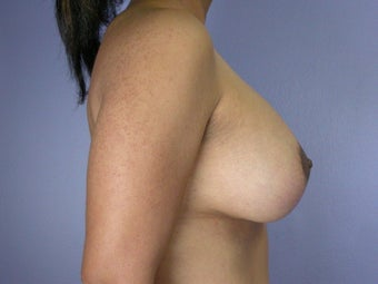 Breast Lift / Breast Augmentation after 291082