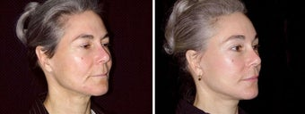42 year old female, facelift before 621947
