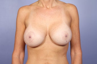 Breast Lift / Breast Augmentation    after 291049