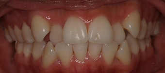 Invisalign before and afters before 151761