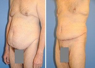 Abdominoplasty before 356410