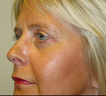 Upper and Lower Eyelid Blepharoplasty after 53230