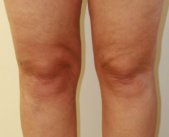 Liposuction of Inner Knees after 286009