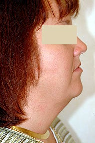 Neck Liposuction before 87335