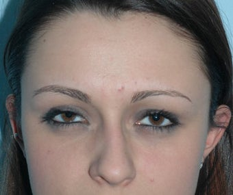 Non-Surgical Rhinoplasty before 118335