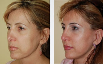 Revision Rhinoplasty before 346254