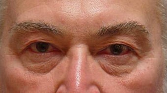 Lower blepharoplasty with fat repositioning before 251709