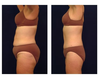 Tummy Tuck or Abdominoplasty before 283089