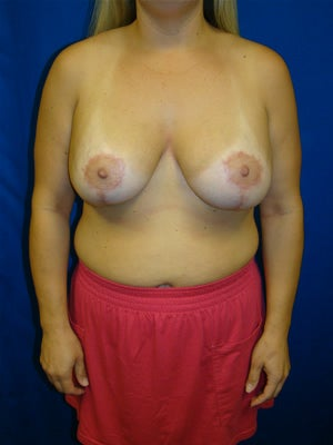 Revisonary Breast Surgery after 114904