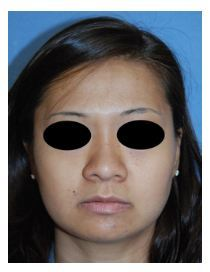 Asian Rhinoplasty Before and After