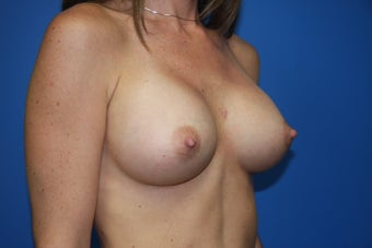 Breast Augmentation after 218307