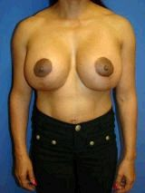 Breast Revision, Reconstruction Surgery after 149005
