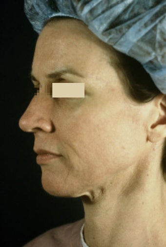 ActiveLift Facelift before 109223