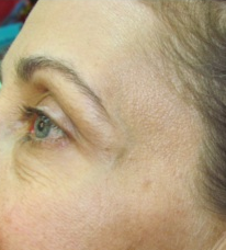 Botox for crow's feet after 383411