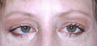 Brow Lift with lower blepharoplasty (lower eyelids) after 143523