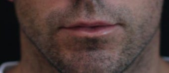 Male lip augmentation after 393232