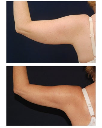 Liposuction after 397168
