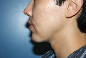 Chin augmentation after 546575