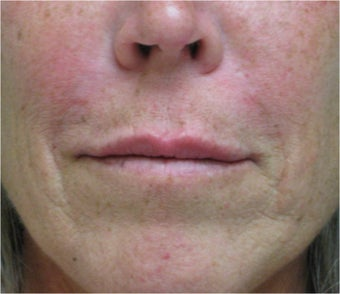 Juvederm to the upper lip after 77461