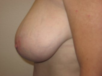 Breast Reduction before 291350