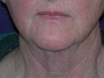 Necklift before 208439