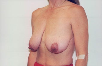 Breast Lift before 218952