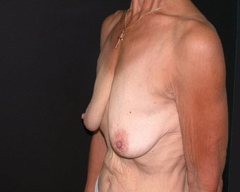 breast lift 334100
