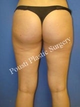 Liposuction 632100