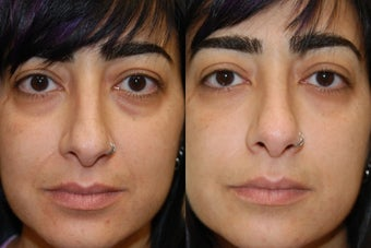 "Silikon-1000, Injectable Filler treatment for lower eyelid ""bags"" and naso-labial folds. before 145620"