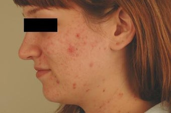 Laser Acne Treatment before 82945