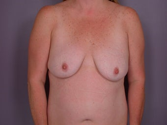Breast Lift / Breast Augmentation before 291096