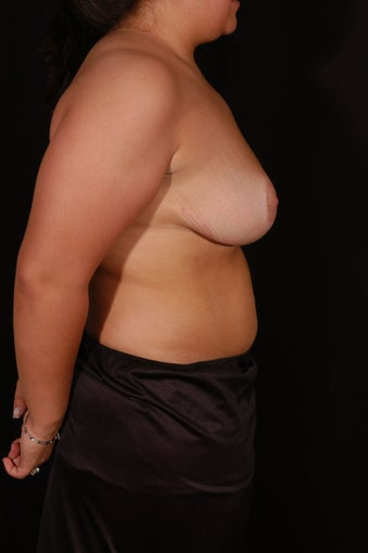 Breast Reduction after 130613