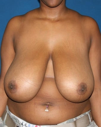 Breast Reduction before 643645