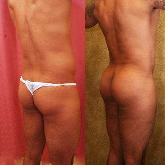Brazilian buttock augmentation with fat grafting to the buttocks with liposuction in Los Angeles 583433