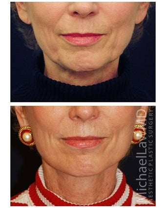Lower Face and Neck Lift before 355640