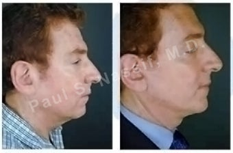Lower Face and Neck Lift before 138179
