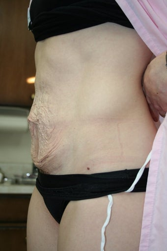 Tummy Tuck before 73263