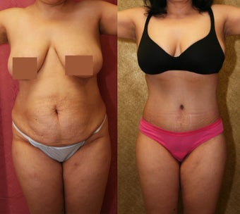 tummy tuck  before 304704