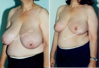 Breast Reduction before 243753