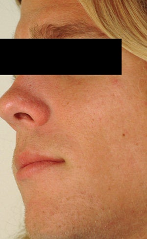 Laser Resurfacing for Enlarged Pores after 89100