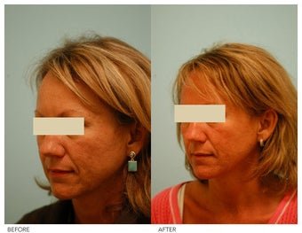 Acne Scarring Correction before 136805
